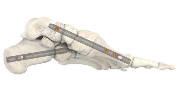 Stryker Corporation: Knochenarbeit, die sich lohnt